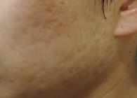 턱여드름흉터